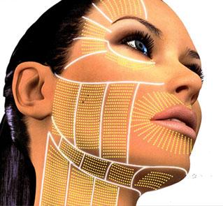 Silhouette Lift, die modernste Methode zur Straffung des Gesichtes innerhalb weniger Minuten