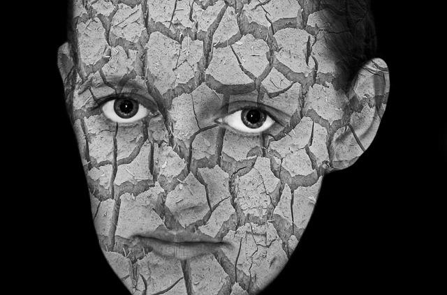 8 Tipps gegen Akne-Narben