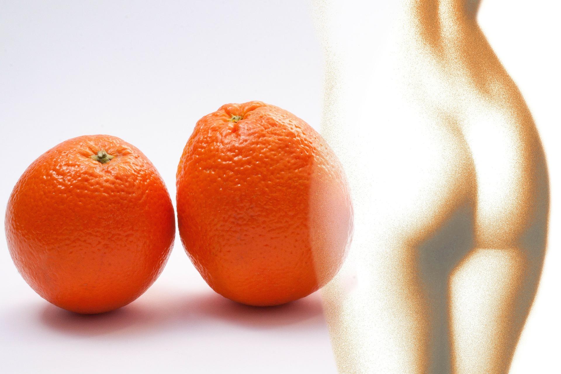 3 Hausmittel gegen Cellulite