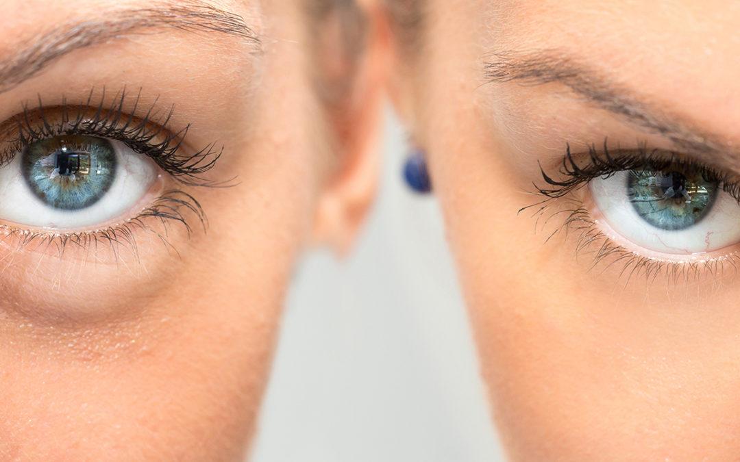 Der perfekte Augenaufschlag: Wimpernverlängerung und -verdichtung im Überblick