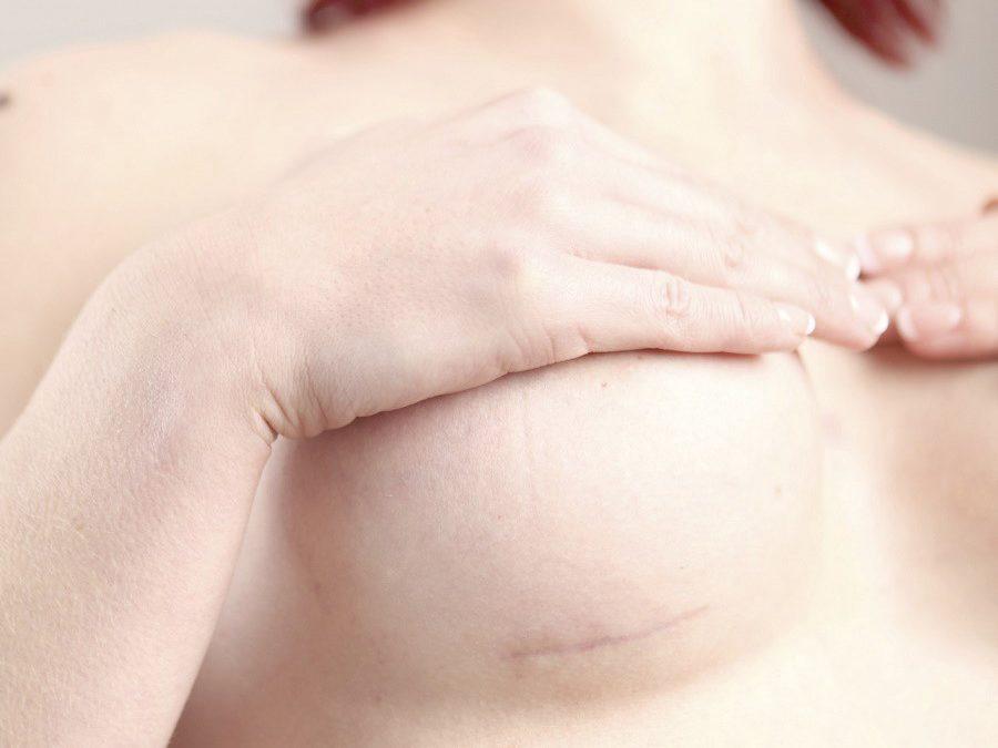 Kann die Brustvergrösserung ohne Narben erzielt werden?