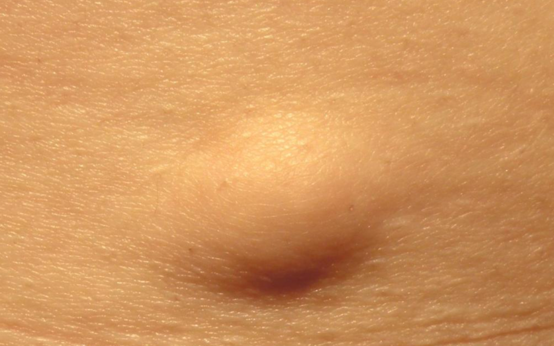 Lipome – eine gutartige Fettgeschwulst