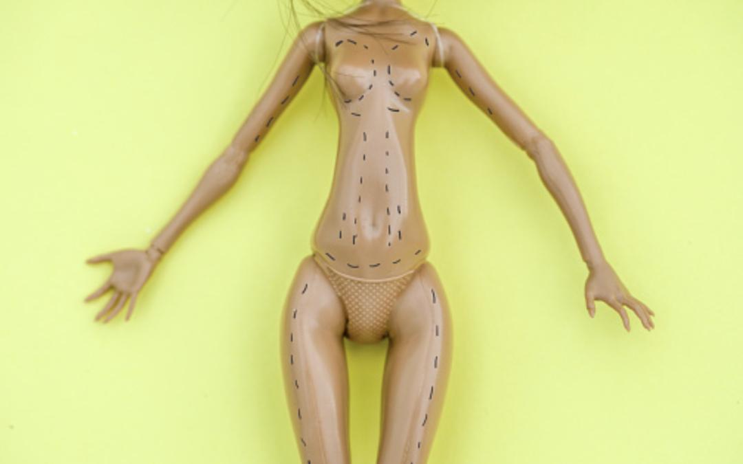 Hilft Fettabsaugen bei Übergewicht?
