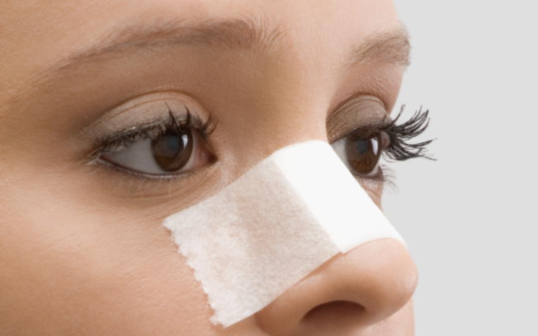 Verhalten nach einer Nasenkorrektur