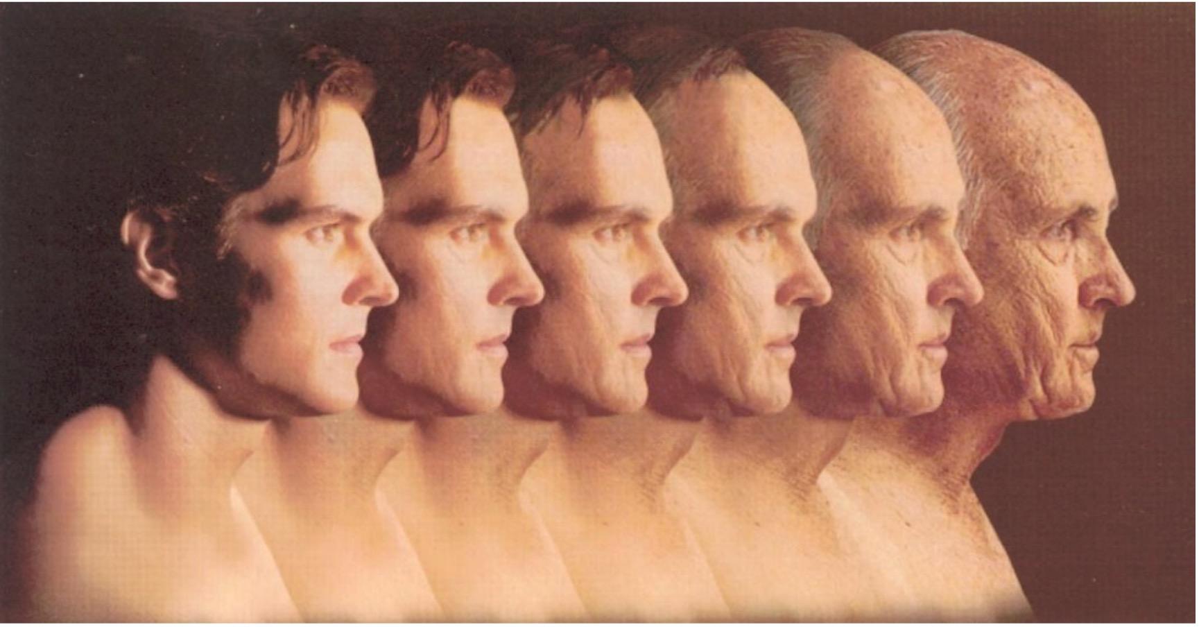 Hautalterung Mann