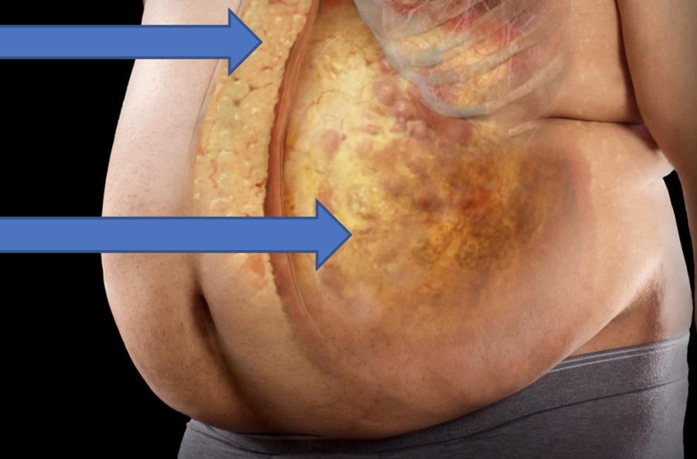 Fettpolster am Bauch Männer