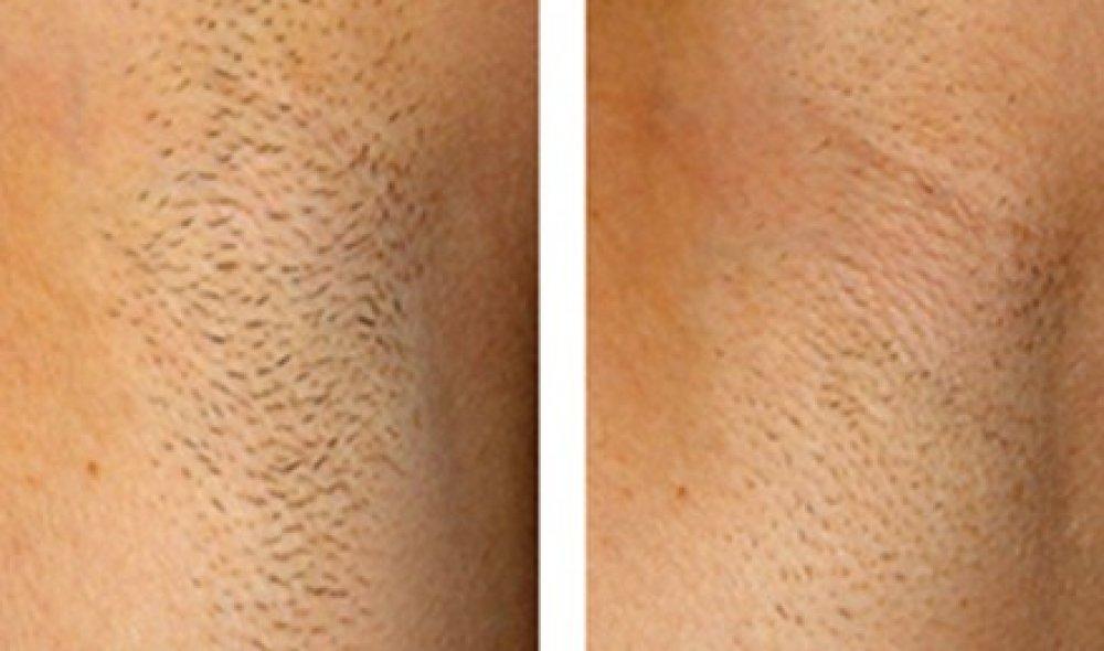 Dauerhafte Haarentfernung Beautyclinic