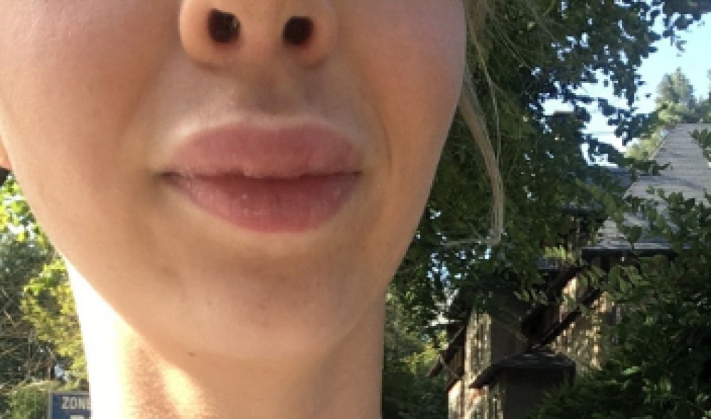 Hervorragende Arbeit bei Lippenkorrektur