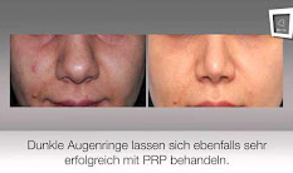 Dr. Lindes Vampire Lift / Eigenbluttherapie