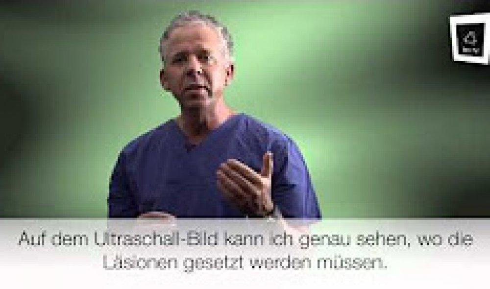 Dr. Lindes Ultherapy-Behandlung (Hautstraffung ohne Spritze durch Ultraschall)